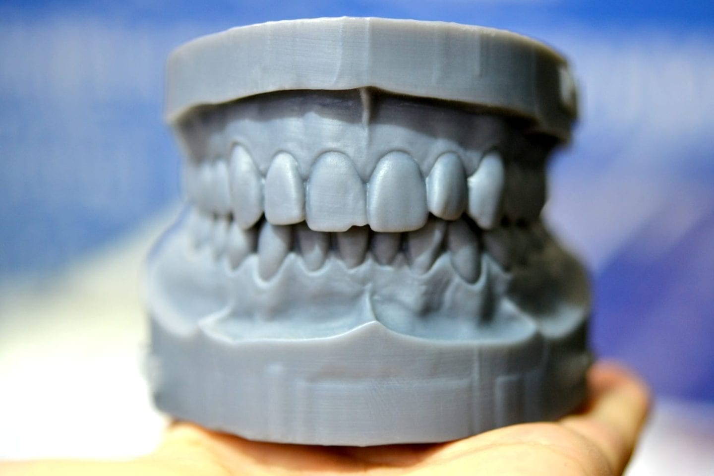 dental 3D printers are saving dentists and orall/maxillofacial professionals of all kinds time and money